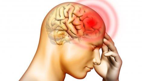 bol glowy migrena masaż fizjoterapia